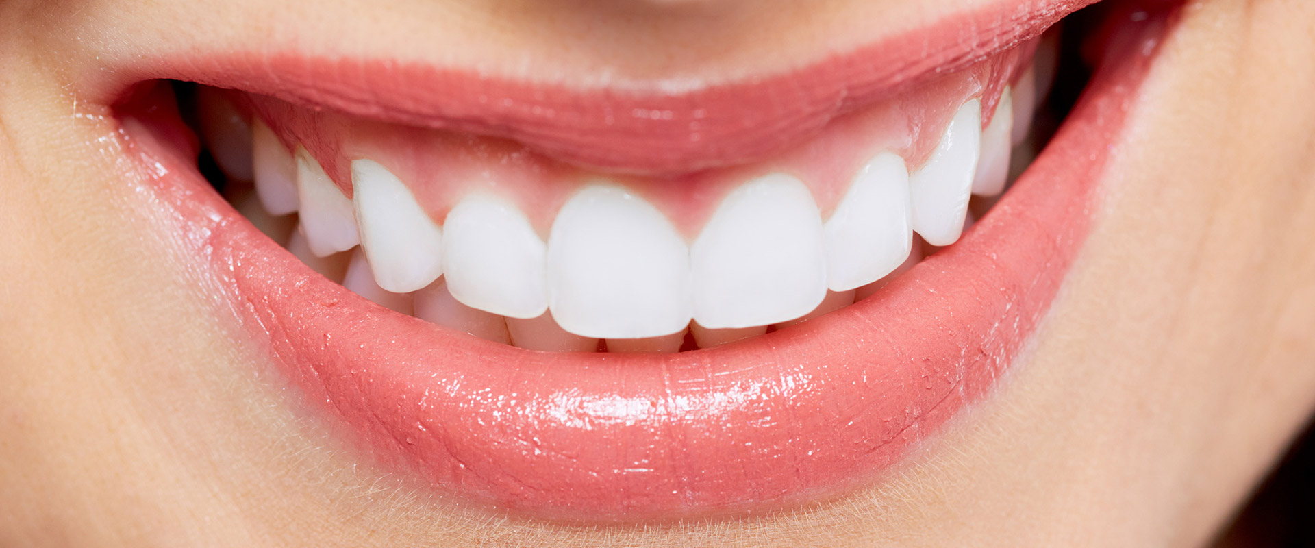 Bleaching Zahnarzt Itzehoe