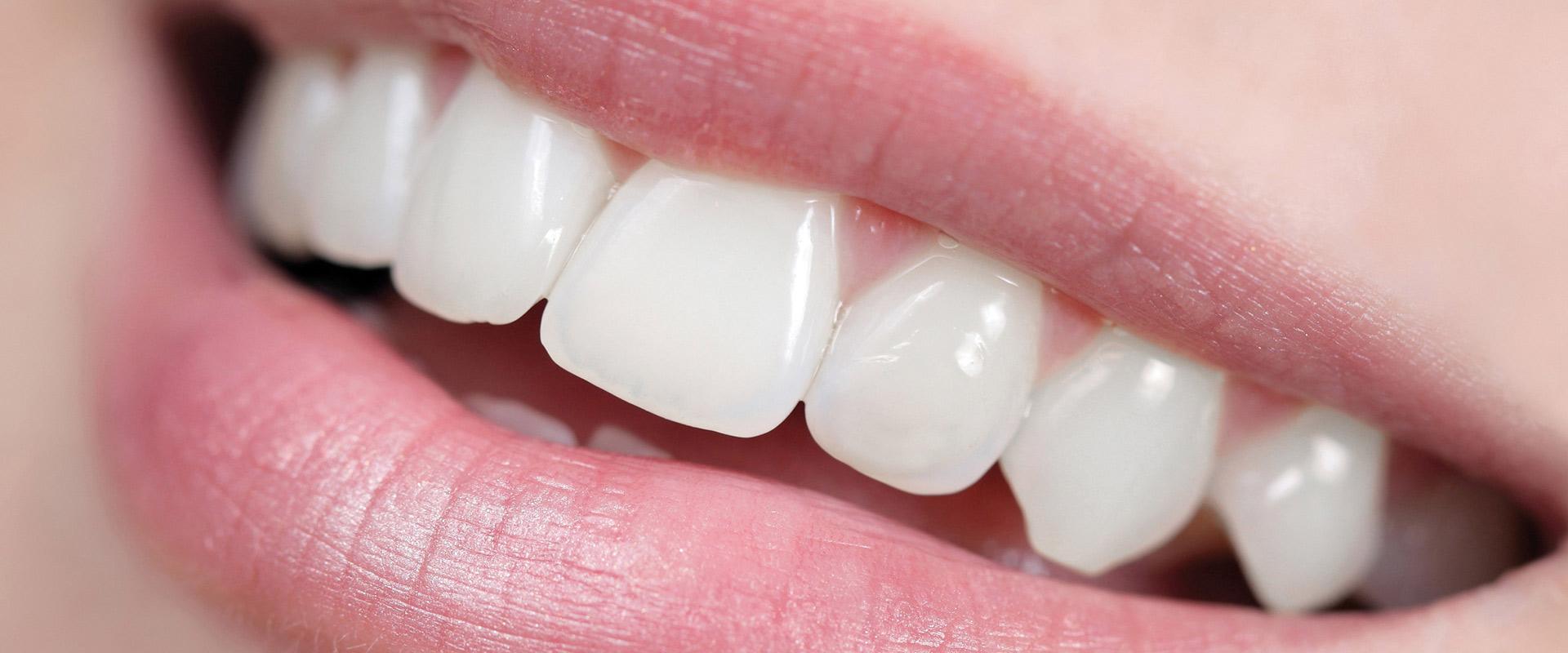 Zahnchirurgie in Itzehoe