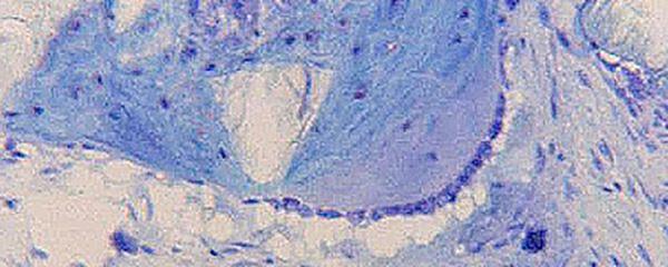 Knochenersatzmaterial Kiefer